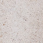 Moleanos Limestone